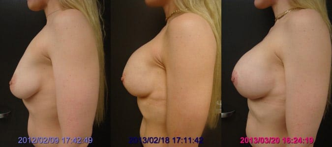 Before / 1 year After Surgery / After Capsule Release