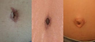 Belly button after tummy tuck performed by other surgeons.