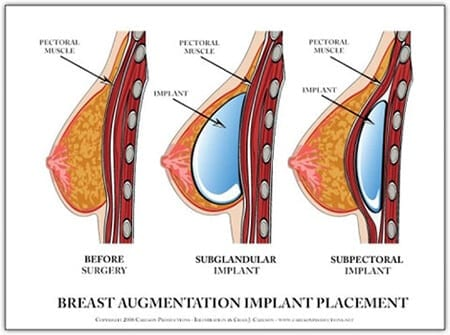 Breast Implants Placement | Ronald M. Friedman