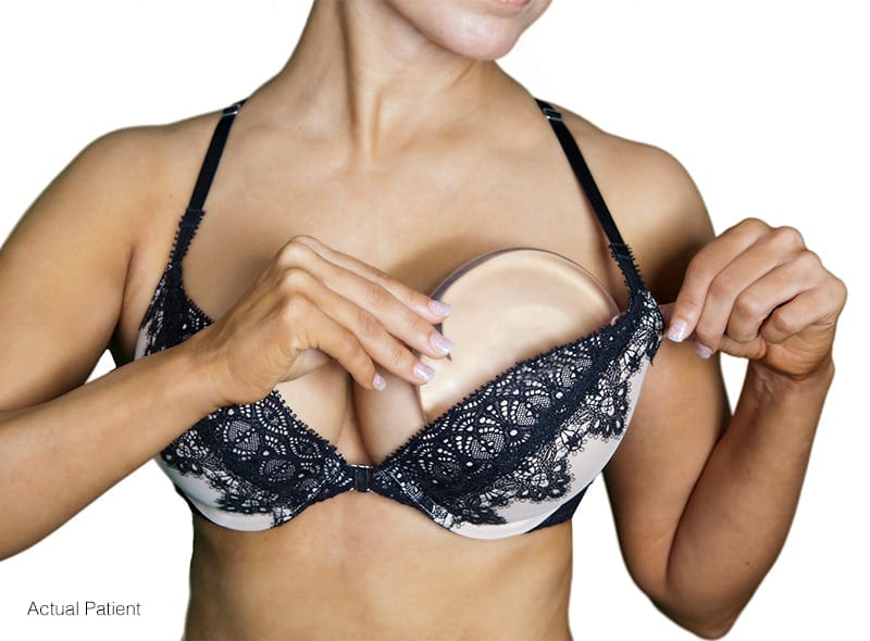 Breast Implant Size | Ronald M. Friedman