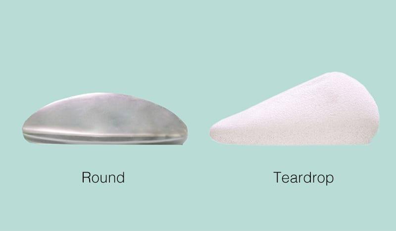 Implants Shapes | Ronald M. Friedman
