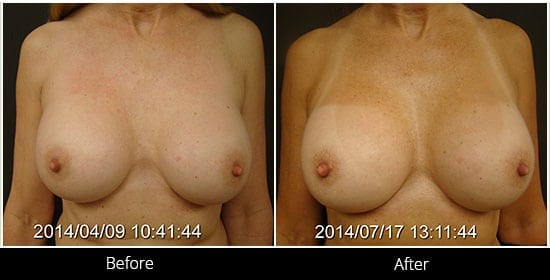 Breast Implant Revision Before & After 8 Front