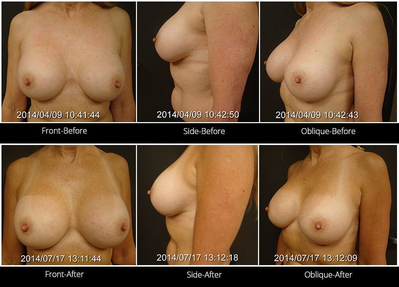 Breast Implant Revision Before & After 8 Full