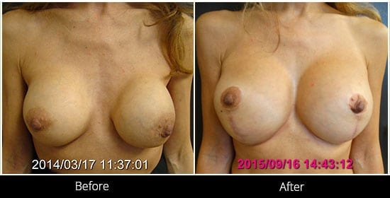 Breast Implant Revision Before & After 9 Front
