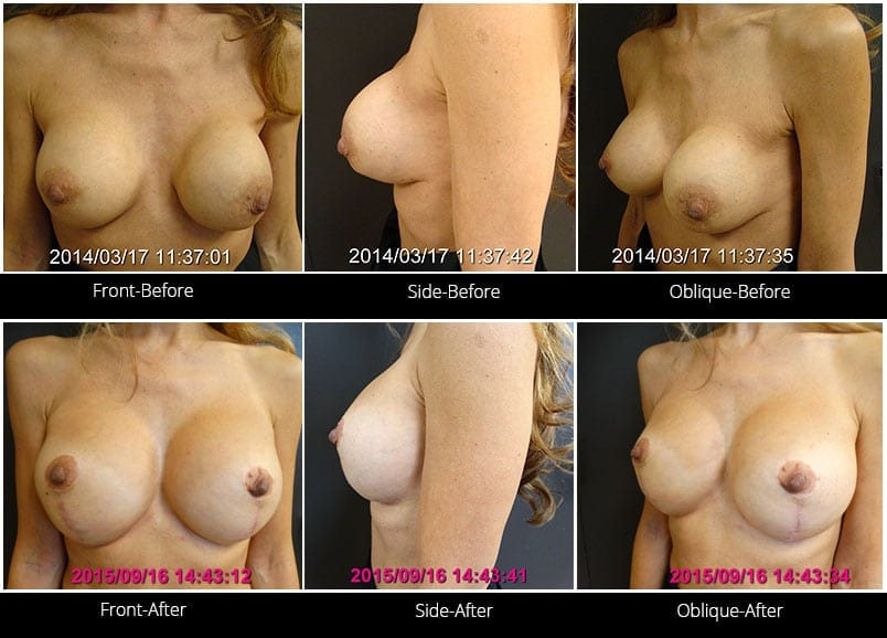 Breast Implant Revision Before & After 9 Full