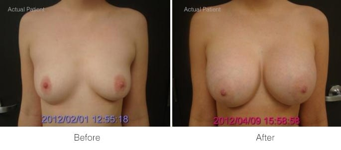 Before and After Breast Augmentation | Ronald M. Friedman