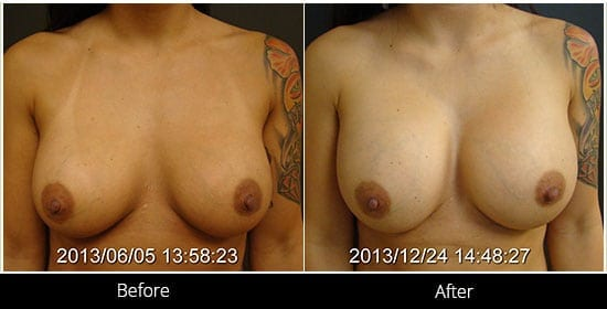 Breast Implant Revision Before & After 6 Front