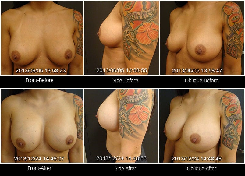 Breast Implant Revision Before & After 6 Full