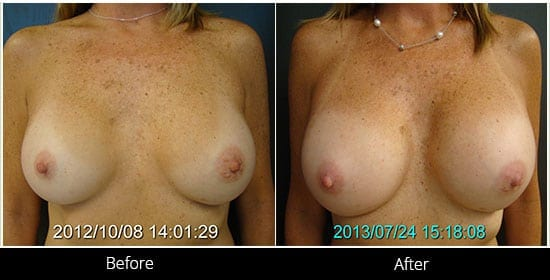 Breast Implant Revision Before & After 7 Front