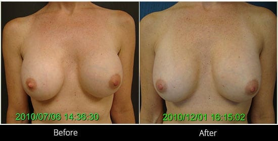 Breast Implant Revision Before & After 4 Front