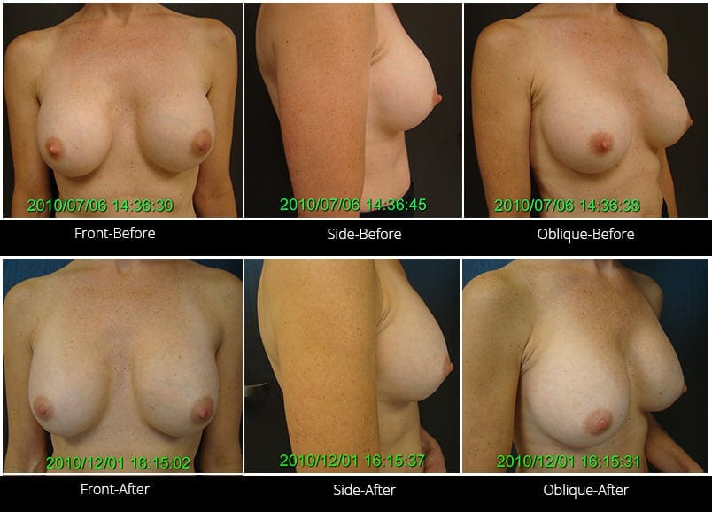 Breast Implant Revision Before & After 4 Full