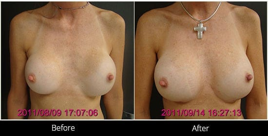 Breast Implant Revision Before & After 5 Front