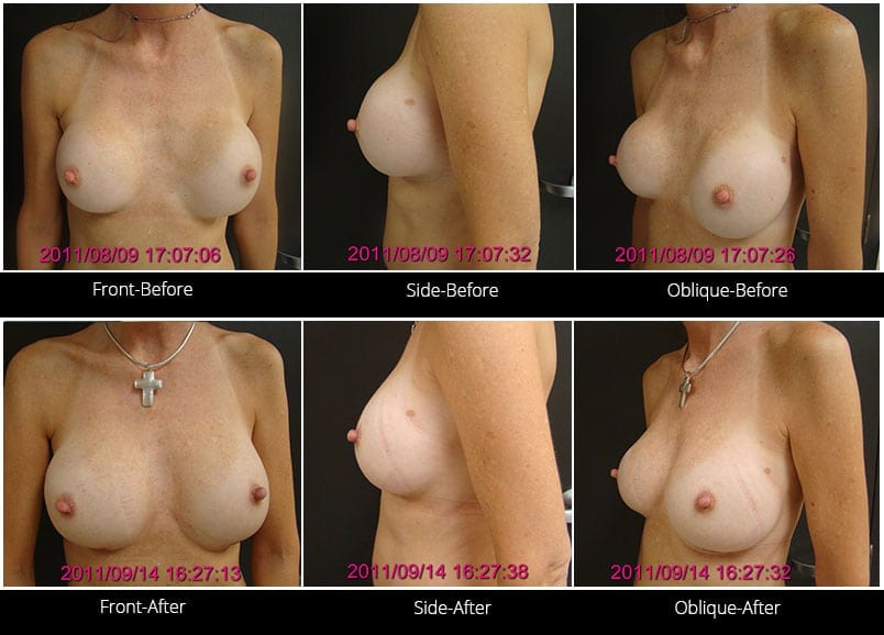 Breast Implant Revision Before & After 5 Full