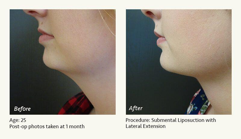 Chin Liposuction In Plano Dallas Tx Ronald Friedman M D