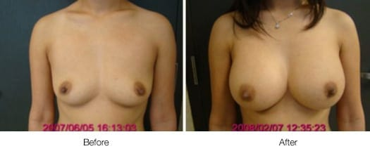 Before and After Breast Lift | Ronald M. Friedman