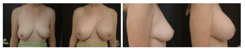 Breast Implant Actual Patient
