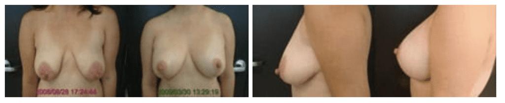 Breast Implant Actual Patient 2