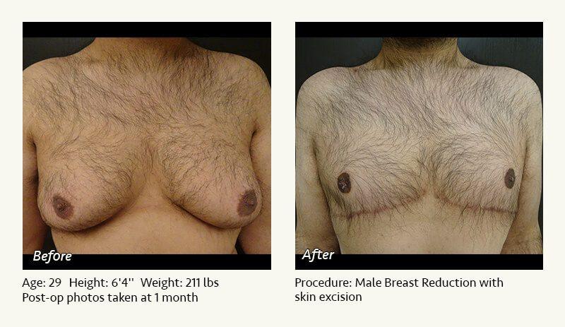 Gynecomastia Male Breast Reduction Plano Tx Ronald Friedman M D