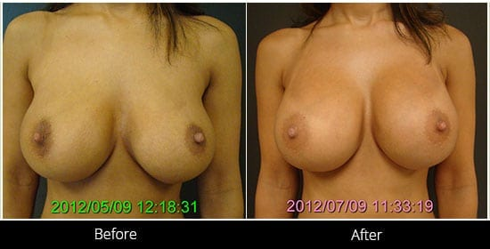 Breast Implant Revision Before & After 10 Front