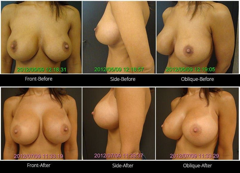 Breast Implant Revision Before & After 10 Full