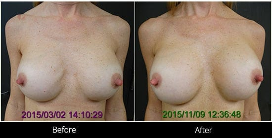 Breast Implant Revision Before & After 11 Front