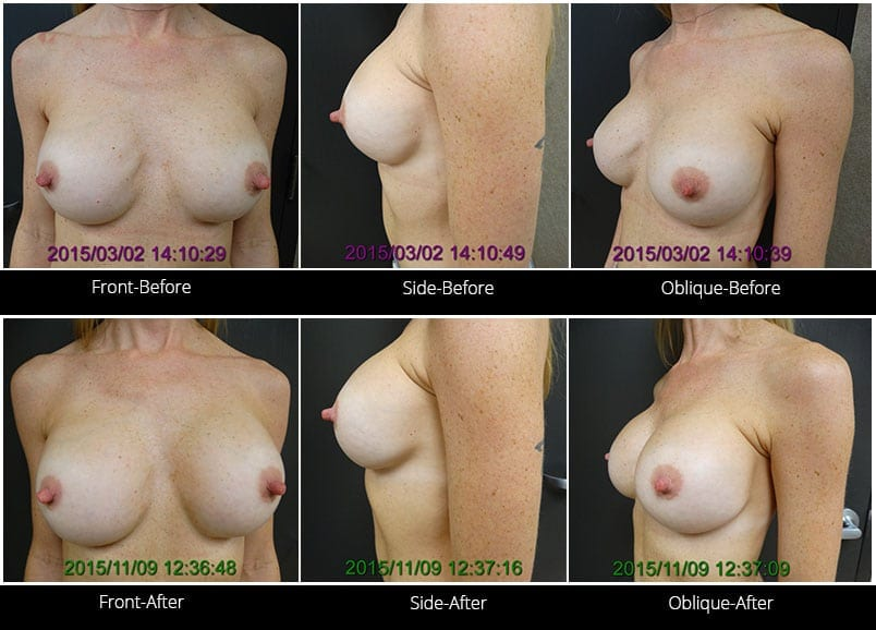 Breast Implant Revision Before & After 11 Full