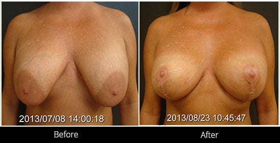 Breast Implant Revision Before & After 12 Front