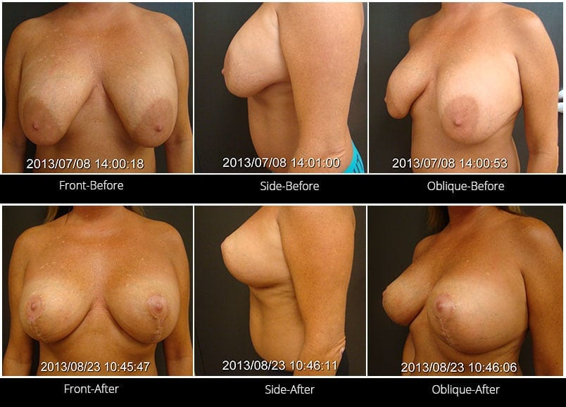 Breast Implant Revision Before & After 12 Full