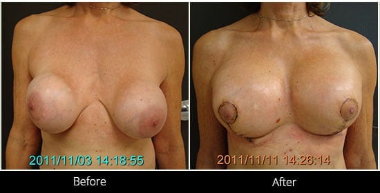 Breast Implant Revision Before & After 13 Front