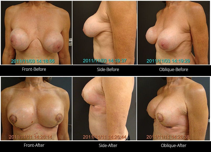 Breast Implant Revision Before & After 13 Full