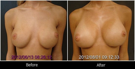 Breast Implant Revision Before & After 1 Front