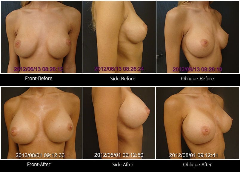 Breast Implant Revision Before & After 1 Full