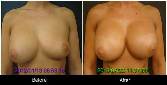Breast Implant Revision Before & After 2 Front