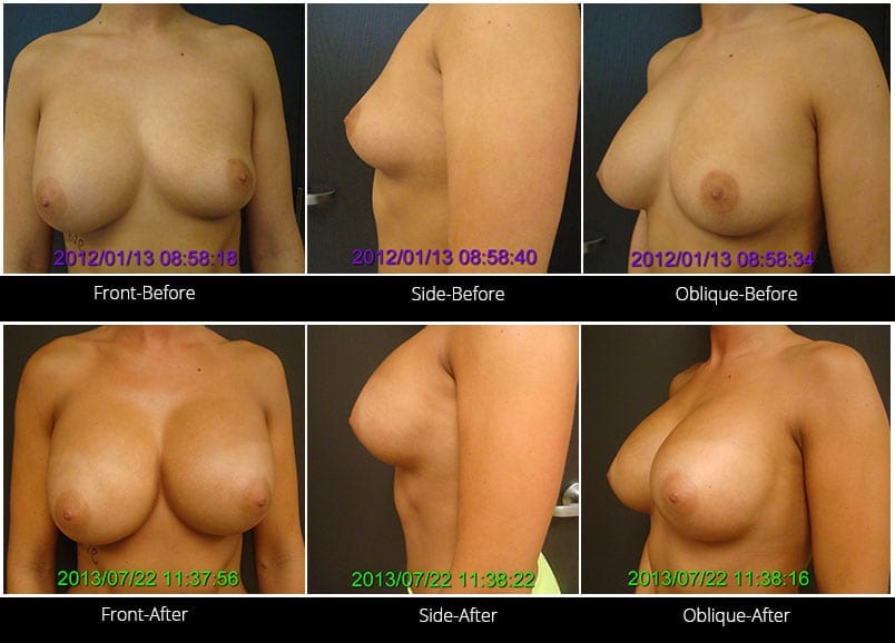 Breast Implant Revision Before & After 2 Full