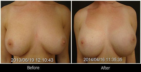 Breast Implant Revision Before & After 3 Front