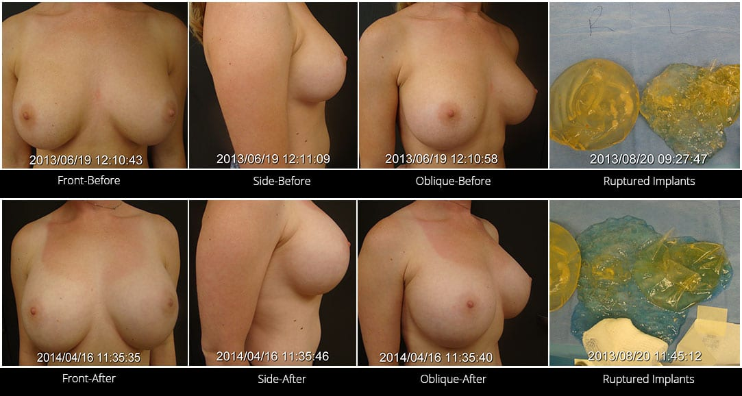 Breast Implant Revision Before & After 3 Full