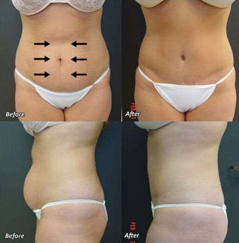 Before & After Tummy Tuck | Ronald M. Friedman, M.D.