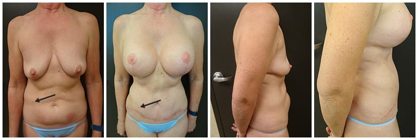 Before and after photo of a Full Tummy Tuck