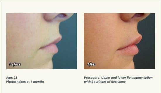 Lip Augmentation in Plano & Dallas, TX | Ronald Friedman, M D