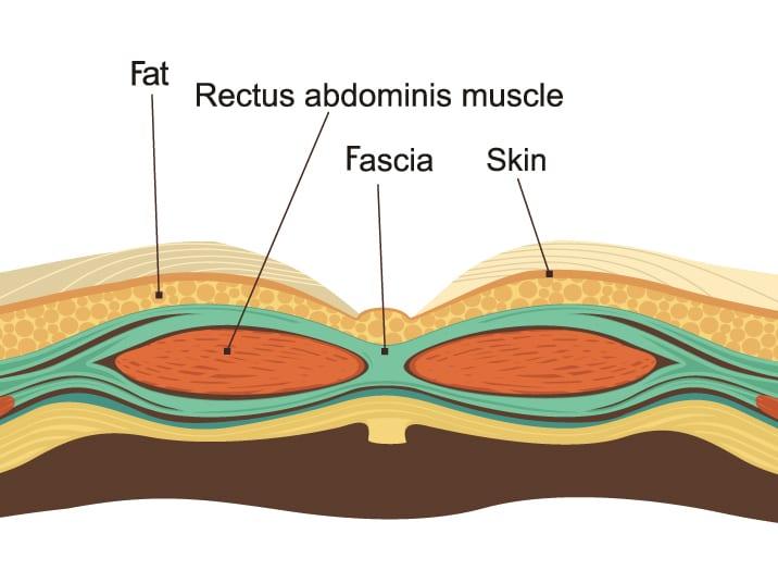 Diagram: skin, fat, fascia, and muscle