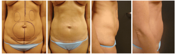 Before & After Liposuction | Ronald M. Friedman, M.D.""