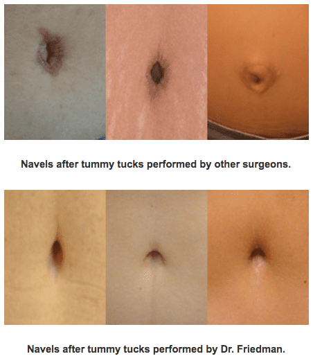 Before & Afte Navel Surgery and Tummy Tuck | Ronald M. Friedman, M.D.""