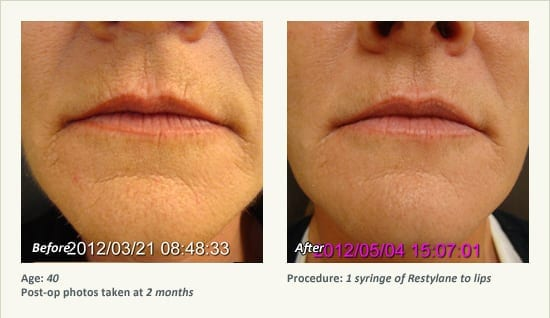 Restylane® & Juvéderm® in Plano & Dallas, TX | Ronald Friedman, M D