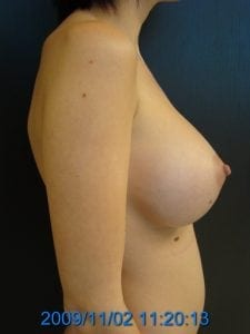After Breast Augmentation Side View