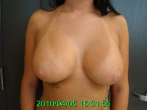 After Breast Augmentation With Saline Implants