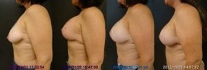 Breast Augmentation with Lift Settling Sequence Side View