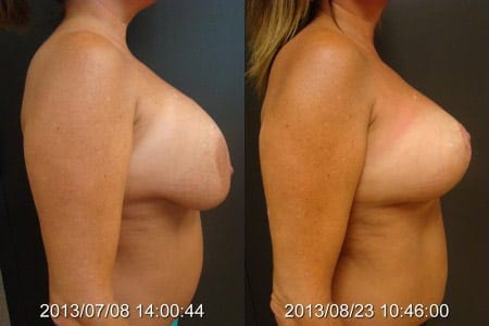 Before and After Breast Lift Side View