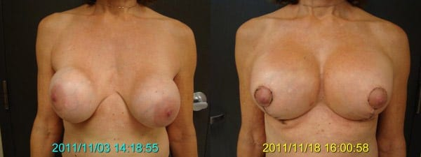 Before and After Breast Revision and Lift Front View