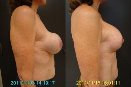 Before and After Breast Revision and Lift Side View