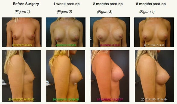Breast Implant Settling Sequence Front and Side